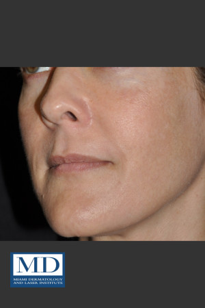 After Photo for Melasma Face Treatment 118 - Jill S. Waibel, MD - Prejuvenation