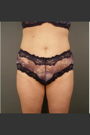 After Photo for Liposuction #44 Front View   - Dr. David Amron - ZALEA Before & After