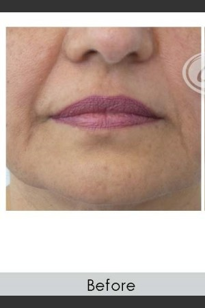 Before Photo for Marionette Line Filler   - Annie Chiu, MD - ZALEA Before & After