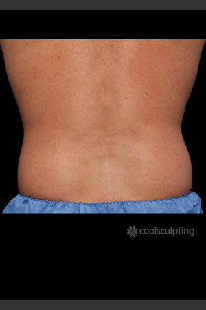 Before Photo for CoolSculpting on Man's Flanks   - ZALEA Before & After
