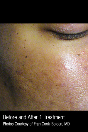 After Photo for Treatment of Facial Pigmentation #331 -  - Prejuvenation