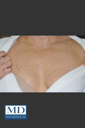 Before Photo for IPL Brown Spots Treatment 108 - Jill S. Waibel, MD - Prejuvenation