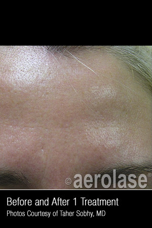 After Photo for Treatment of Pores and Skin Texture #338   - Lawrence Bass MD - ZALEA Before & After