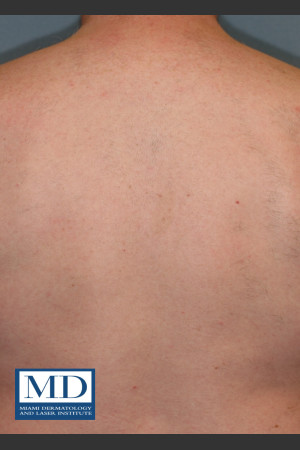 After Photo for Laser Hair Removal 122   - Jill S. Waibel, MD - ZALEA Before & After