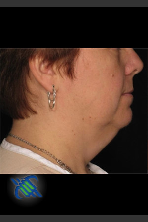 Before Photo for Laser Liposuction Left Side of Neck   - Roy G. Geronemus, M.D. - ZALEA Before & After