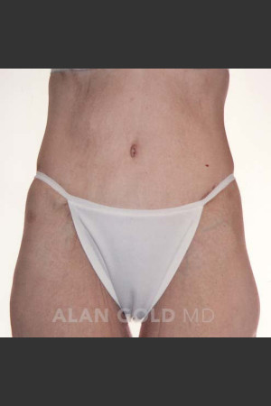 After Photo for Circumferential Body Lift 367   - Alan Gold MD - ZALEA Before & After