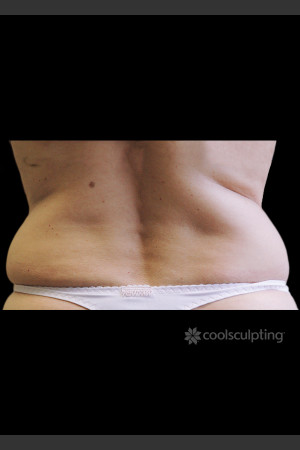 Before Photo for CoolSculpting on Woman's Flanks #2 -  - Prejuvenation