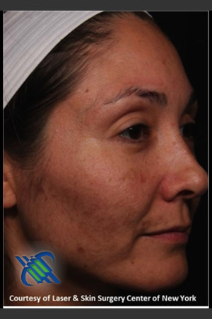 Before Photo for Facial Skin Rejuvenation of Face   - Roy G. Geronemus, M.D. - ZALEA Before & After