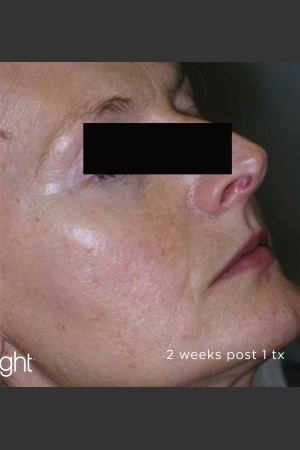 After Photo for Full Face Sun Damage Before & After    - Lawrence Bass MD - ZALEA Before & After
