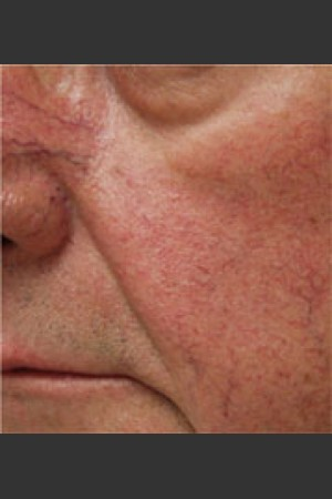 Before Photo for Dr. Langdon IPL Treatment    - Robert Langdon - ZALEA Before & After