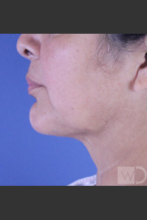 After Photo for SmartLipo Liposuction of Lower Face   - Daniel Friedmann  - ZALEA Before & After