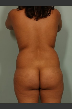 Before Photo for Brazilian Butt Lift   - Lawrence Bass MD - ZALEA Before & After