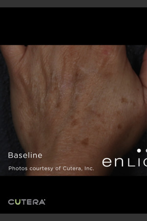 Before Photo for Pigmented Lesions on Hand with Enlighten   - ZALEA Before & After
