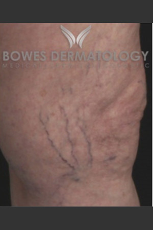 Before Photo for Spider Vein Treatment   - Leyda Elizabeth Bowes, M.D. - ZALEA Before & After