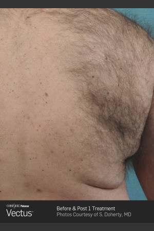 Before Photo for Hair Removal of Back with Vectus   - ZALEA Before & After