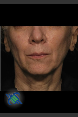 Before Photo for Treatment of Facial Laxity with Profound   - Roy G. Geronemus, M.D. - ZALEA Before & After
