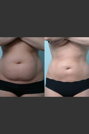 Before Photo for Liposuction   - Mark B. Taylor, M.D. - ZALEA Before & After