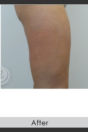 After Photo for VanquishME with Cellutone Treatment   - Annie Chiu, MD - ZALEA Before & After