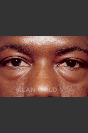 Before Photo for Blepharoplasty 1027   - Lawrence Bass MD - ZALEA Before & After