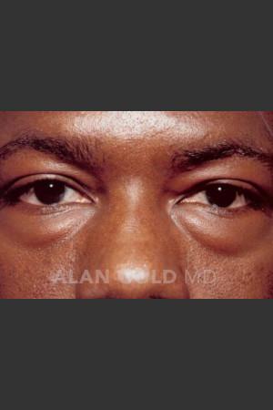 Before Photo for Blepharoplasty 1027 - Alan Gold MD - Prejuvenation