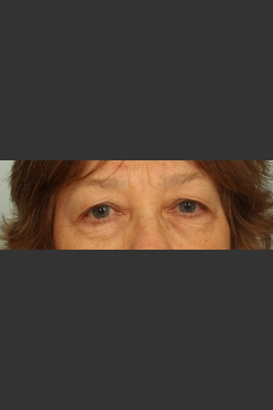 Before Photo for Eyelid Surgery - El Paso Cosmetic Surgery - Prejuvenation