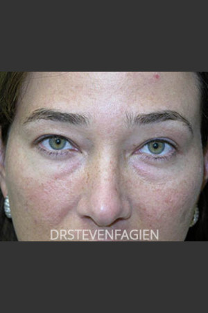 Before Photo for Upper and Lower Blepharoplasty - Patient 6   - Steven Fagien, MD - ZALEA Before & After