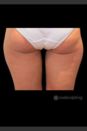 After Photo for CoolSculpting on Woman's Inner Thigh   - ZALEA Before & After
