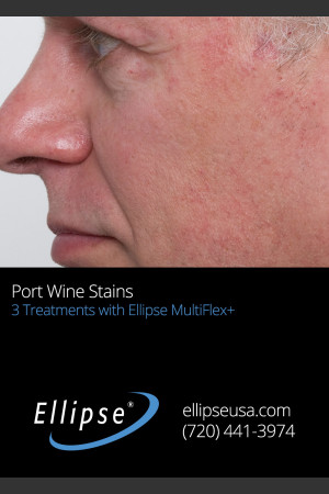 After Photo for 3 Treatments of Port Wine Stain on the Face   - ZALEA Before & After