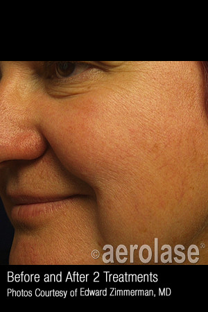 After Photo for Treatment of Facial Blood Vessels #323   - ZALEA Before & After