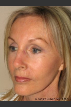 After Photo for Facelift 6944   - Sanjay Grover MD FACS - ZALEA Before & After