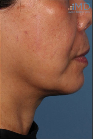 After Photo for Ultherapy Skin Laxity Treatment of Lower Face - Margaret Ann Weiss - Prejuvenation
