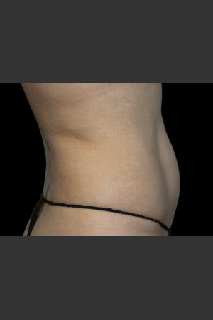 After Photo for Body Contouring Treatment #118   - ZALEA Before & After