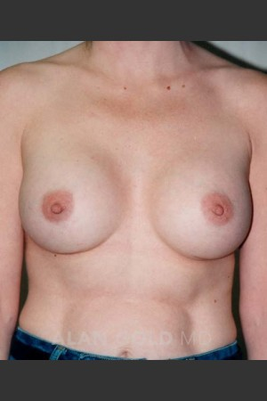 After Photo for Breast Augmentation 582   - Alan Gold MD - ZALEA Before & After