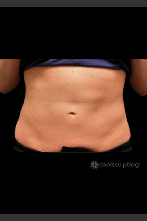 After Photo for CoolSculpting on Woman's Lower Abdomen   - ZALEA Before & After