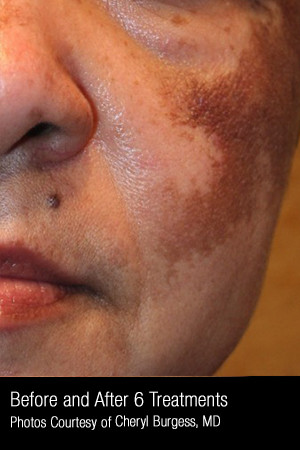 Before Photo for Treatment of Melasma #319 -  - Prejuvenation