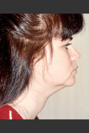 Before Photo for Liposuction of Neck 96 Side View   - Alan Gold MD - ZALEA Before & After