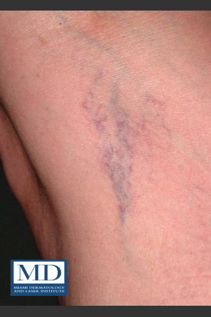 Before Photo for Sclerotherapy Treatment 140   - Jill S. Waibel, MD - ZALEA Before & After