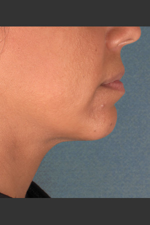 After Photo for Kybella Treatment 34 Year Old Female   - ZALEA Before & After