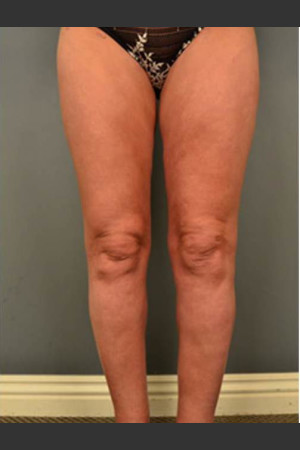 After Photo for Circumferential Liposuction #46 - Dr. David Amron - Prejuvenation