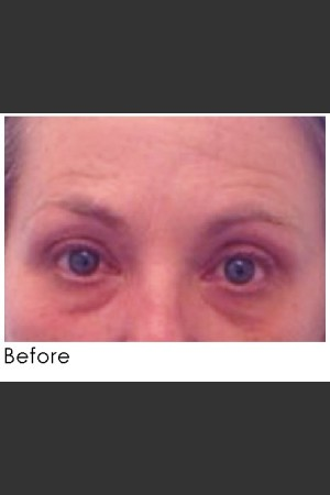 Before Photo for Undereye Filler + Exilis Elite Radiofrequency Skin Tightening   - Annie Chiu, MD - ZALEA Before & After