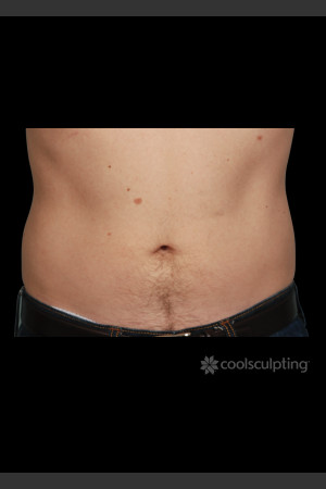 After Photo for CoolSculpting on Man's Abdomen   - ZALEA Before & After