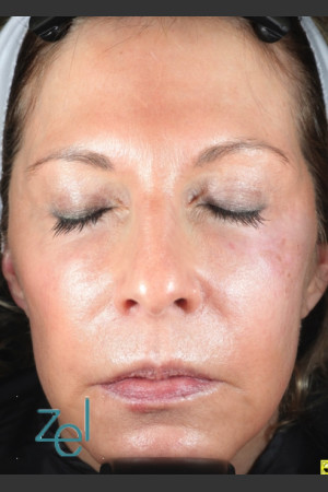 After Photo for Treatment of Left Side Hyperpigmentation   - Lawrence Bass MD - ZALEA Before & After