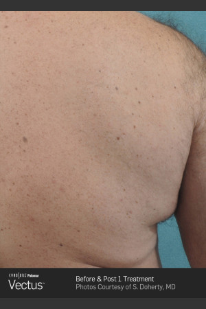 After Photo for Hair Removal of Back with Vectus   - Lawrence Bass MD - ZALEA Before & After