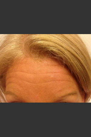 Before Photo for Before & After Botox   - Janell Ocampo - ZALEA Before & After