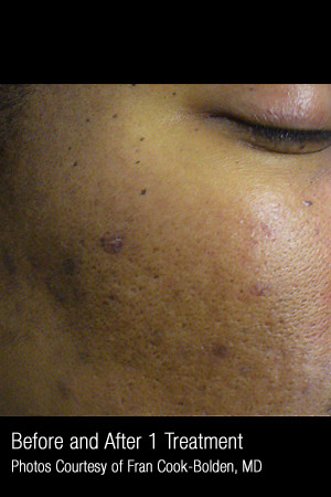 Before Photo for Treatment of Facial Pigmentation #331 -  - Prejuvenation