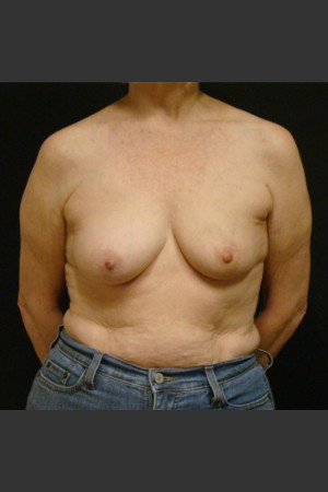 Before Photo for Breast Augmentation with a Lift   - Gallaher Plastic Surgery & Spa MD - ZALEA Before & After