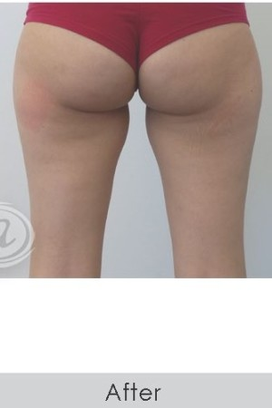 After Photo for CoolSculpting+ for Banana Roll (Under Buttock Roll)   - Annie Chiu, MD - ZALEA Before & After