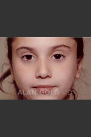After Photo for Otoplasty 887   - Alan Gold MD - ZALEA Before & After