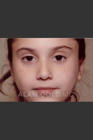 After Photo for Otoplasty Case 887 - Alan Gold MD - Prejuvenation