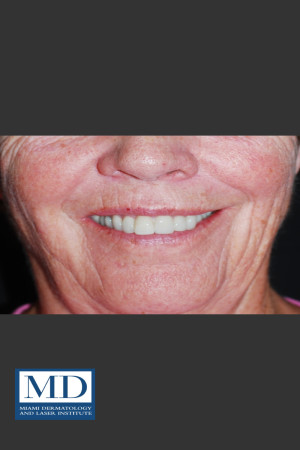 After Photo for Neurotoxin Gummy Smile 129   - Jill S. Waibel, MD - ZALEA Before & After